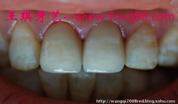 氟斑牙高仿真全瓷牙美学修复术微观